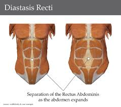 Diastasis Recti Womens Health