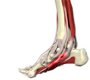 Foot, Ankle and Heel Pain Treatment Foot and ankle Pain