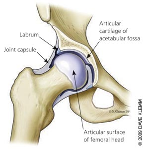 Normal anatomy of the hip joint; joint capsule is not damaged.