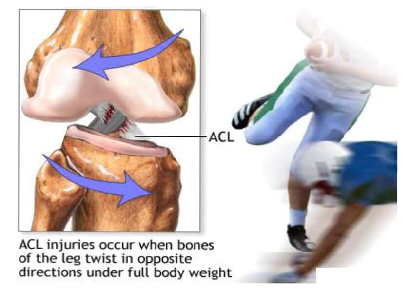 How ACL injury happens; a leg broken, tissues torn
