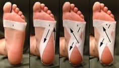 How taping is done to treat foot pain